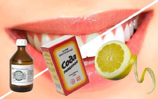 Перекись водорода от зубной боли