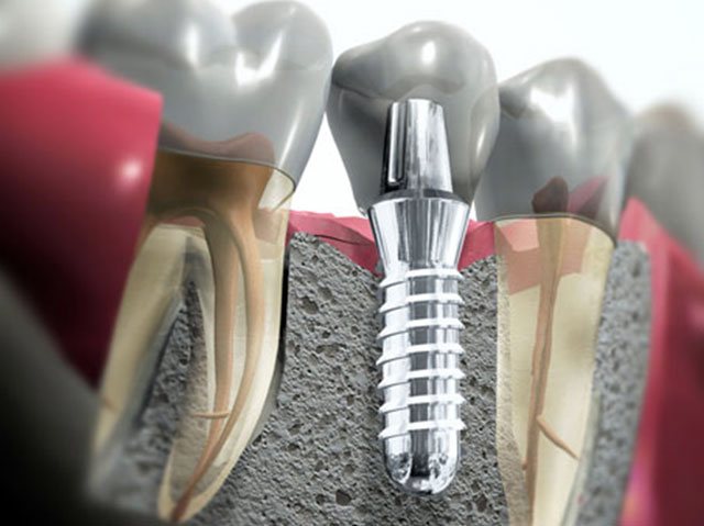 Встановлений імплантат разом з штучною коронкою