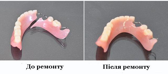 Как отремонтировать зубные протезы в домашних условиях 981