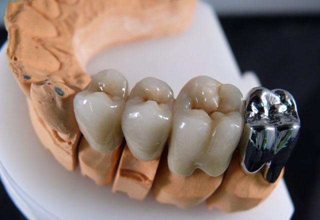 Металокерамічний протез із суцільнолитою коронкою