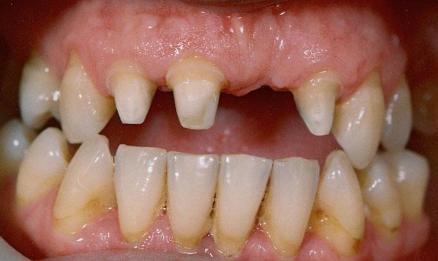 Препаровані (обточені) зуби під мостовидний протез