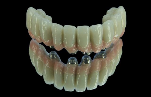 Незнімний зубний протез з фіксацією на імплантатах