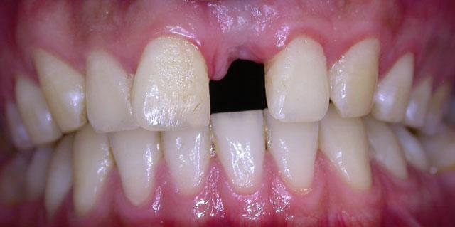 Включені дефекти зубного ряду