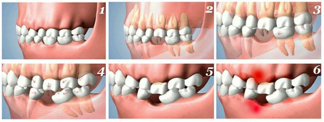 Так відбувається зміщення сусідніх зубів