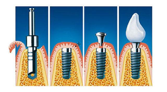Схематичне зображення двохетапної імплантації