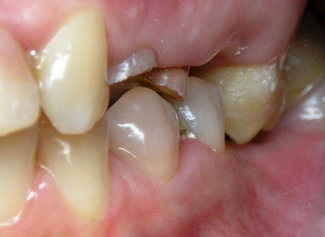 При втраті зуба можливий розвиток іншої ситуації, коли зуб протилежного зубного ряду не маючи опори, якби «займає місце» втраченого зуба.