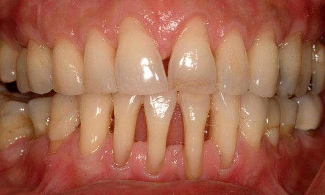 Так виглядають рухомі зуби (але свої!)