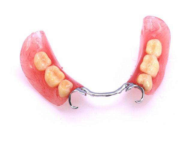 Так виглядає знімний протез (сталеві гачки необхідні для фіксації протеза в порожнині рота)