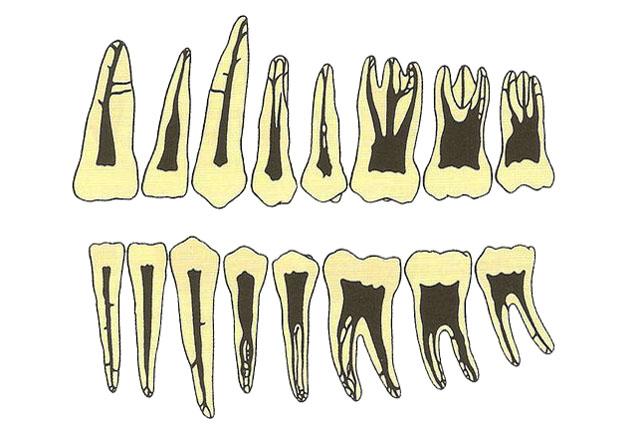 Корені зубів з каналами