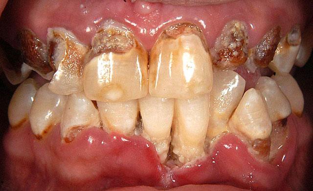 Так виглядають пошкоджені зуби