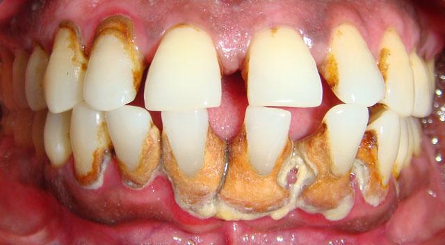 Так виглядає зубний камінь