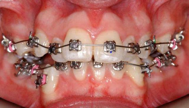 Рівняння зубних рядів за допомогою брекет-систем