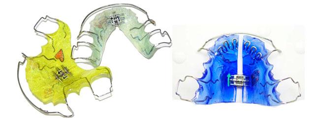 Знімні ортодонтичні пластинки