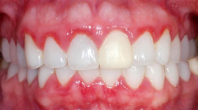 Почервоніння ясен біля шийок зубів – одна з перших ознак гінгівіту