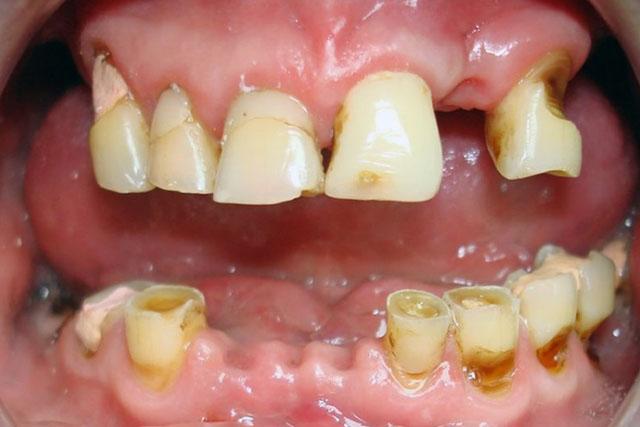 Плохие зубы у беременной 9