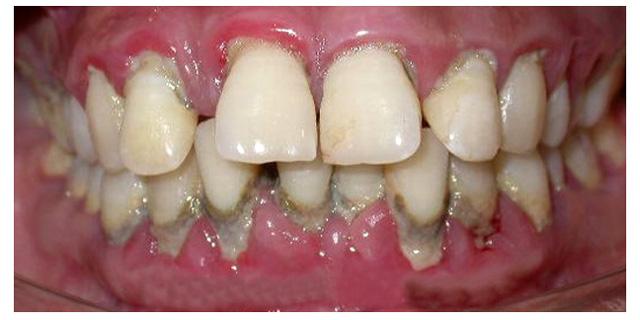 Вставить зубы если у меня пародонтоз