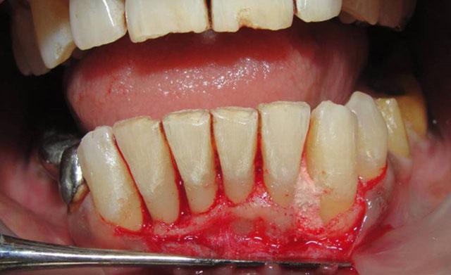 Один з етапів хірургічного лікування пародонтита