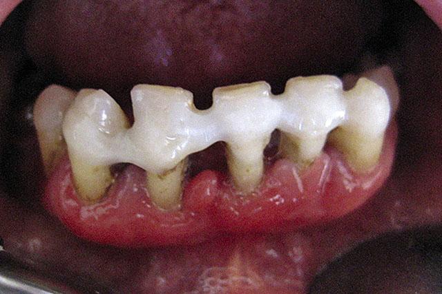 Шинування зубів при пародонтиті