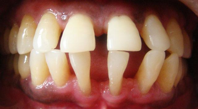 Рухомі пародонтозні зуби