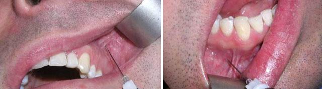 Терапія_56 - Інфільтраційна анестезія