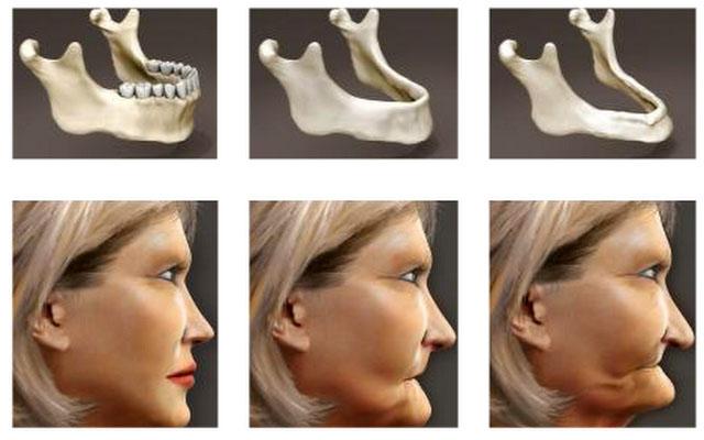 Зміна висоти нижньої третини обличчя у випадку атрофії альвеолярного гребеня нижньої щелепи