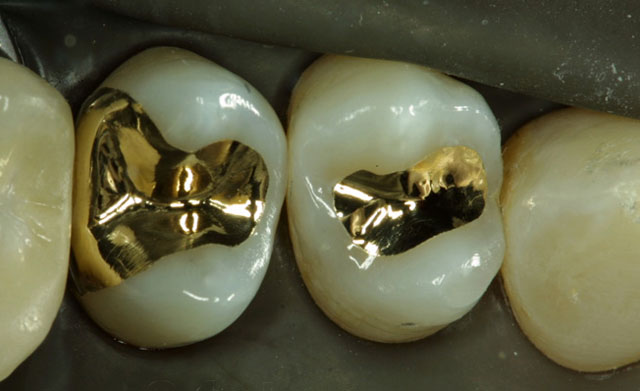 Вкладки із золота