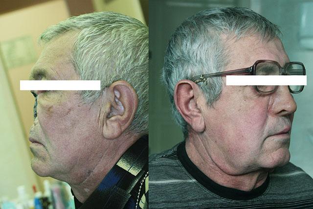 Протез носа з фіксацією за допомогою оправи окулярів