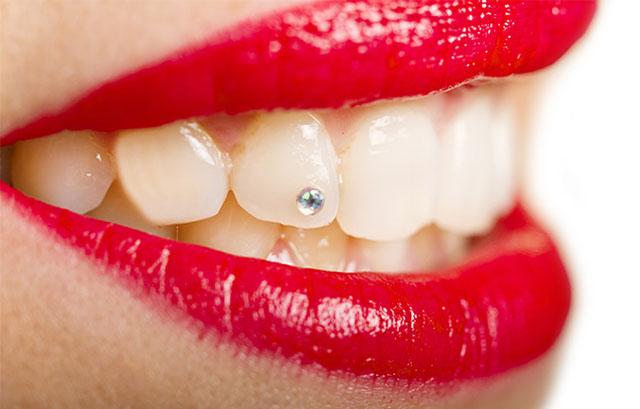 Декоративна стоматологія_0
