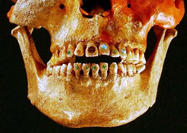 Декоративна стоматологія_1