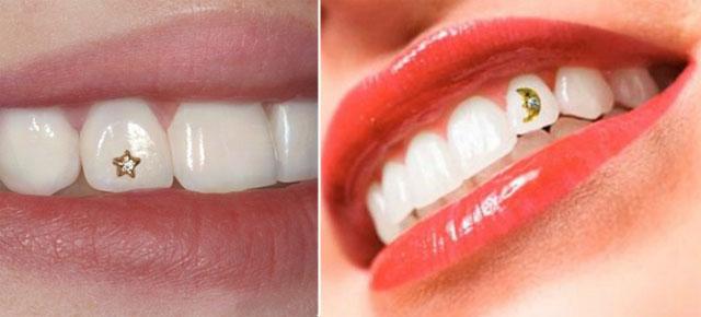 Декоративна стоматологія_3_1