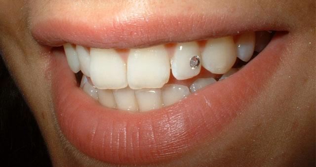 Декоративна стоматологія_4