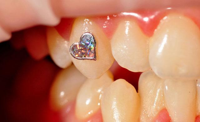 Декоративна стоматологія_5
