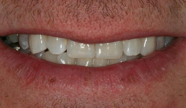 Мал. 10. Зовнішній вигляд посмішки пацієнта