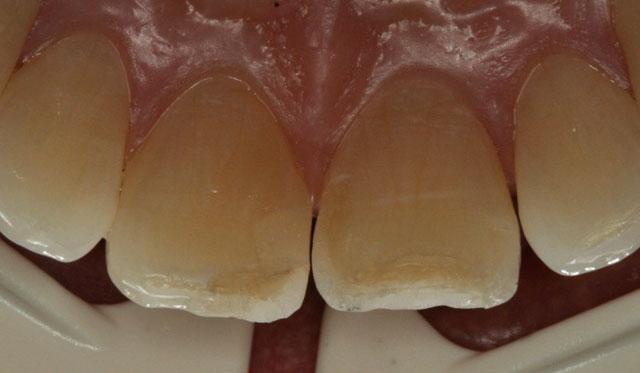 Мал. 2. Клінічна картина, вид з піднебінної поверхні