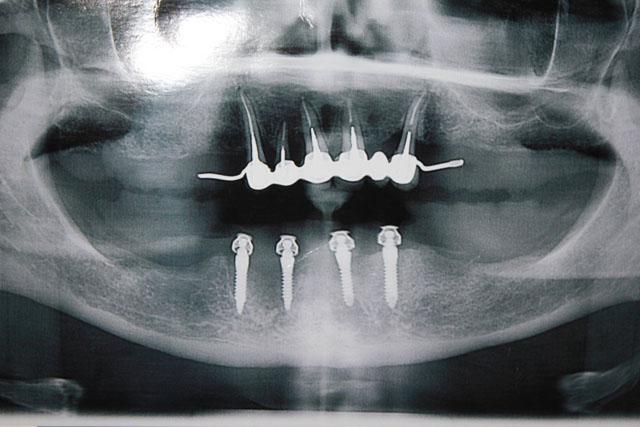 Мал. 14. Ортопантомограма після встановлення імплантатів