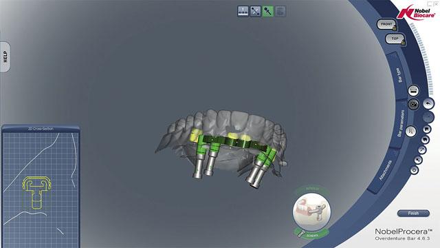Моделювання каркасу балки в системі CAD-CАM