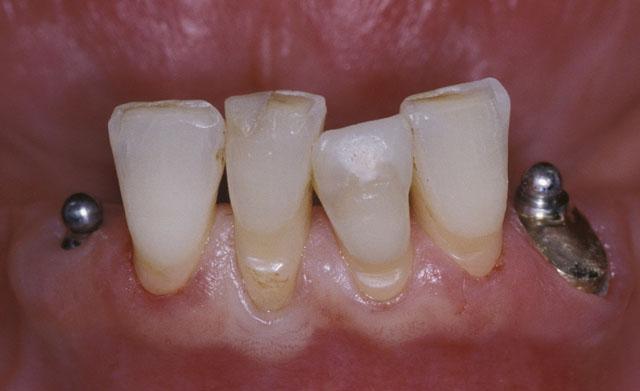 Мал. 2. Поєднання в одній протезній конструкції сферичного атачмента, що фіксується в корені природного зуба, зі сферичним атачментом на імплантаті