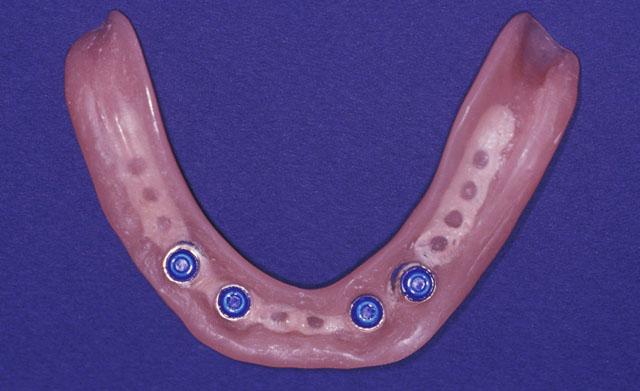 Мал. 3б. Металевий каркас для стабілізації комбінованого протеза