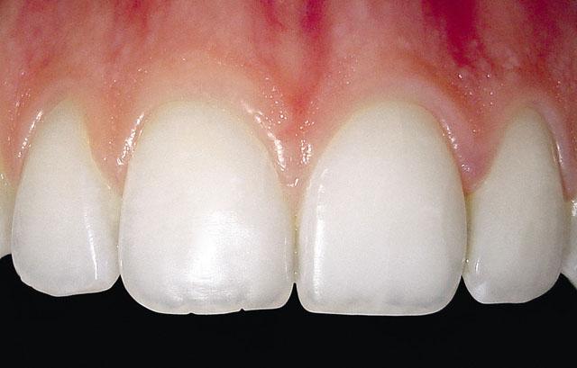 Мал. 1. Ділянка ясен, що не має прикріплення до твердих тканин зуба