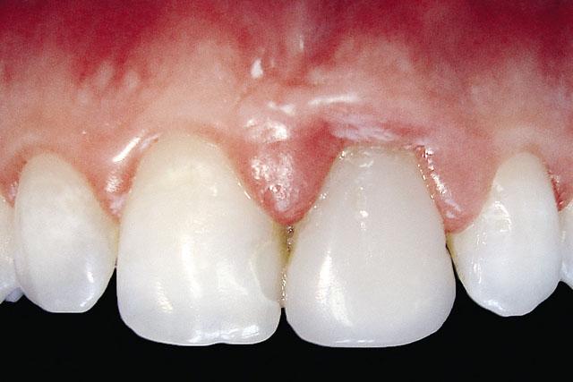 Мал. 5. Запальний процес в області 21 зуба внаслідок неточного краю реставрації