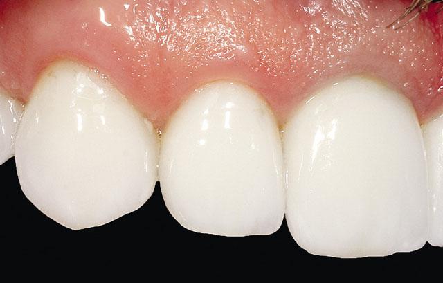 Мал. 6. Відсутність запалення ясен в області передньої групи зубів, вкритих адгезивними керамічними реставраціями