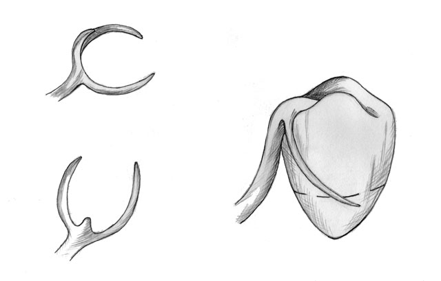 Кламер системи Нея №1 (Аккера)