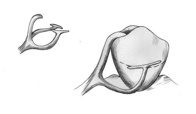 Кламер системи Нея №2 (розщеплений, Т-подібний)