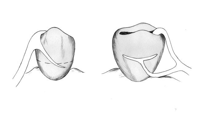 Розташування плечей кламера системи Нея №3 (комбінованого) на опорному зубі