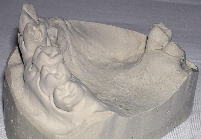 Мал. 1б. Дефект альвеолярного відростка і тіла лівої верхньощелепної кістки з відсутністю ороантрального з'єднання