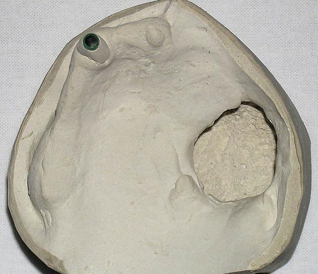 Мал. 6б. Дефект альвеолярного, піднебінного відростків і тіла лівої верхньощелепної кістки
