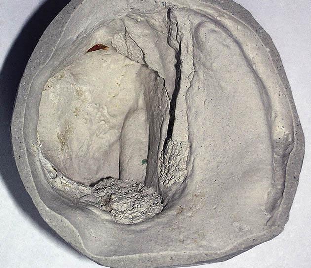 Мал. 7б. Відсутність правої верхньощелепної кістки
