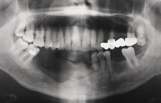 Мал. 9б. Варіант дефекту альвеолярної частини і тіла нижньої щелепи зі збереженням безперервності кістки