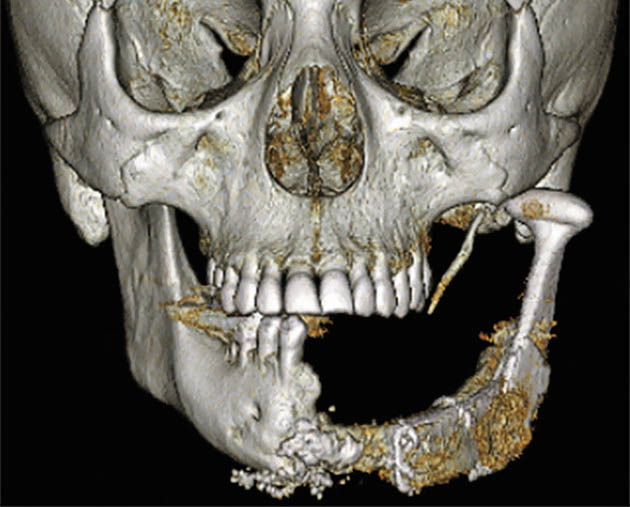 Мал. 11б. Варіант реконструйованого нижньощелепного дефекту тіла і гілки з одностороннім заміщенням голівки нижньої щелепи