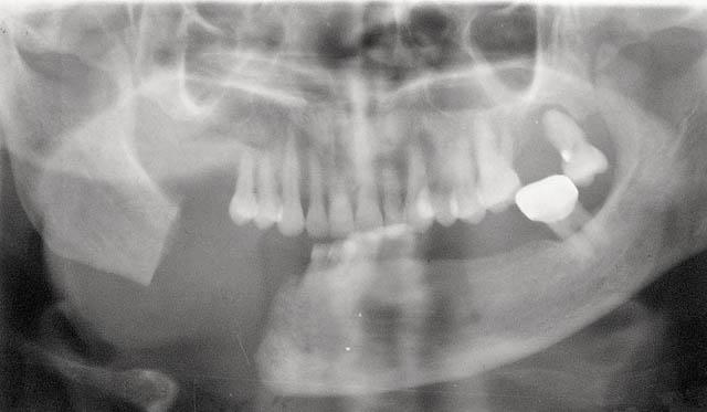 Мал. 13б. Варіант часткової відсутності тіла і гілки нижньої щелепи при збережених скронево-нижньощелепних суглобах